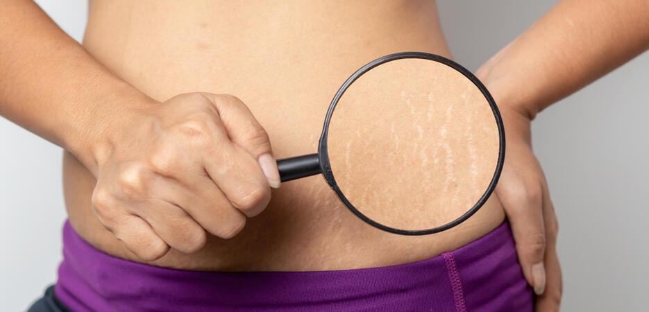 a striák csökkennek a fogyás után